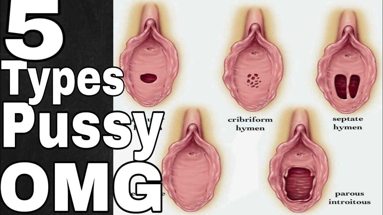 All types of pussy